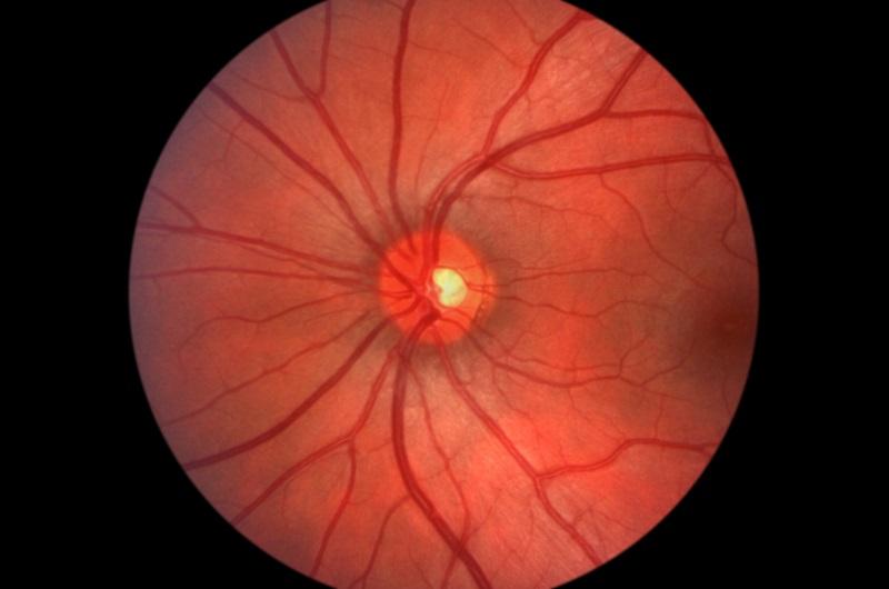 Glaucoma  La Porte, TX